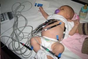 ЭКГ новорожденному