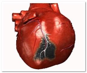 инфаркт, некроз миокарда