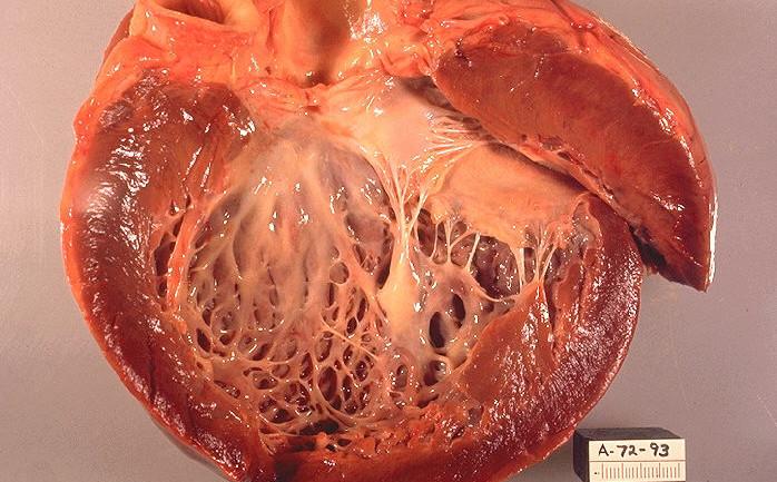 кардиомегалия