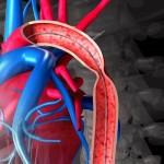 Коарктация аорты — описание болезни, диагностика, лечение